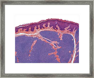 Hair Follicle Tumour Framed Print by Steve Gschmeissner