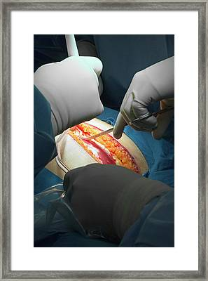 Hysterectomy In Endometrial Cancer Framed Print by Jim West