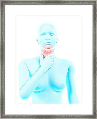 Inflammation Of The Larynx Framed Print by Sebastian Kaulitzki