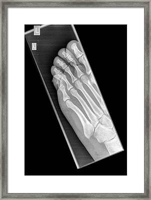 Intermediate Phalanx X-ray Framed Print by Photostock-israel