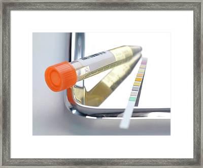 Urine Analysis Framed Print by Tek Image