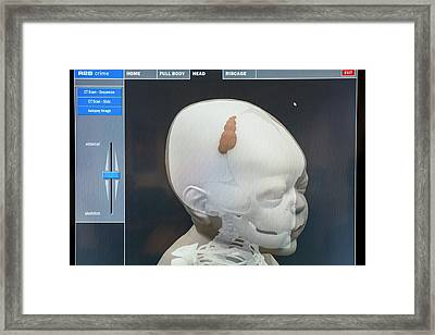 3d Virtual Autopsy Of A Child Framed Print by Louise Murray