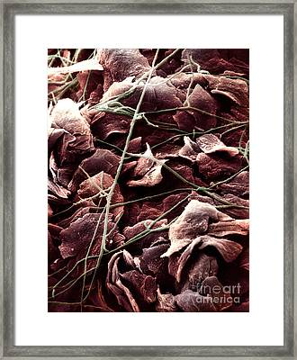 Candida And Epithelial Cells Framed Print by David M. Phillips