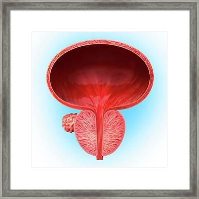 Prostate Gland Tumour Framed Print by Pixologicstudio