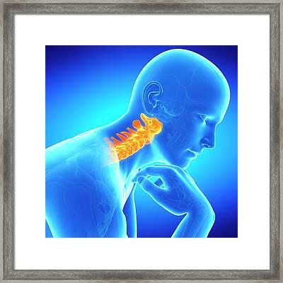 Cervical Spine Framed Print by Sebastian Kaulitzki