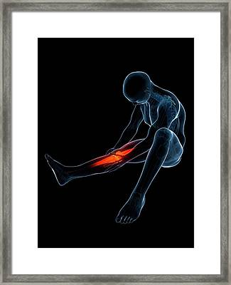Human Knee Pain Framed Print by Sebastian Kaulitzki
