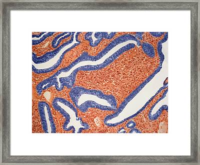 Lung Cancer Framed Print by Steve Gschmeissner