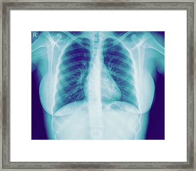 Normal Healthy Chest X-ray Framed Print by Photostock-israel