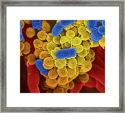Oral Bacteria Framed Print by Science Photo Library