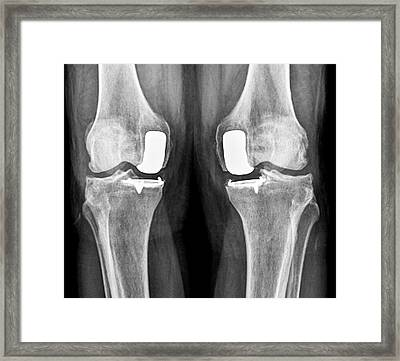 Partial Knee Replacement Framed Print by Zephyr