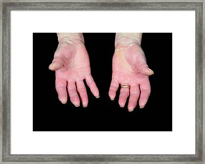 Psoriatic Arthritis Framed Print by Science Photo Library