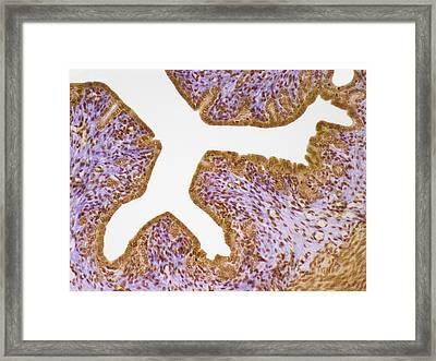 Uterus Framed Print by Steve Gschmeissner