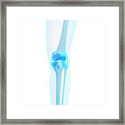 Human Knee Joint Framed Print by Sebastian Kaulitzki