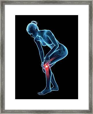 Human Knee Pain Framed Print by Sebastian Kaulitzki