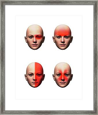 Headache Types Framed Print by Mikkel Juul Jensen