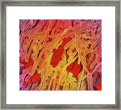 Streptomyces Coelicoflavus Bacteria Framed Print by Science Photo Library