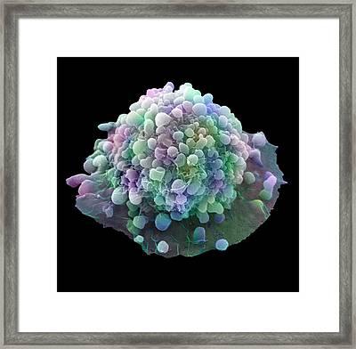 Cervical Cancer Cell Framed Print by Steve Gschmeissner