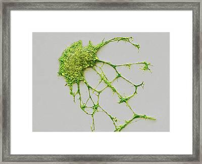 Neurone Framed Print by Steve Gschmeissner
