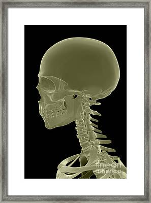 Bones Of The Head And Neck Framed Print by Science Picture Co