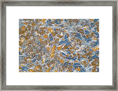Human Pituitary Gland Section. Lm Framed Print by Science Stock Photography