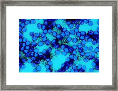Yellow Fever Virus Tem Framed Print by Science Source