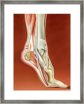 Achilles Tendon Rupture Framed Print by John Bavosi