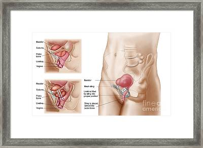 Anatomy Of Bladder Suspension Procedure Framed Print by Stocktrek Images