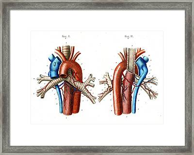 Aortic Arch Framed Print by Collection Abecasis