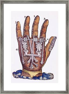 Artificial Hand Designed By Ambroise Framed Print by Wellcome Images