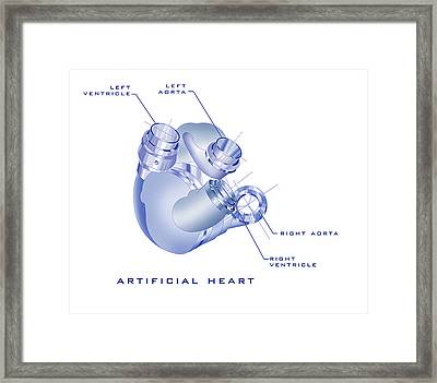 Artificial Heart Framed Print by James Christopher Hill