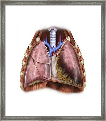 Artist Depiction Of Mesothelioma Framed Print by Alan Gesek