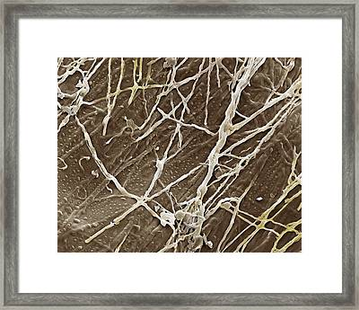 Athlete's Foot Fungus Framed Print by Clouds Hill Imaging Ltd
