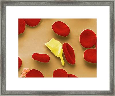 Blood Cells In Malaria Infection Framed Print by Thierry Berrod, Mona Lisa Production