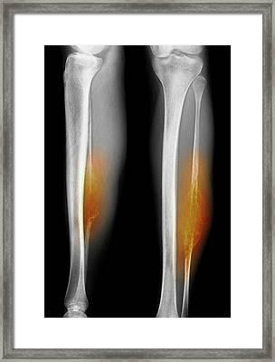 Bone Tumour Framed Print by Mike Devlin