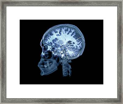 Brain In Alzheimer's Disease Framed Print by Zephyr