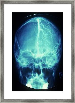 Brain's Blood Supply Framed Print by Alain Pol - Cnri