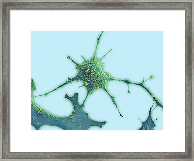 Breast Cancer Cell Framed Print by Science Photo Library