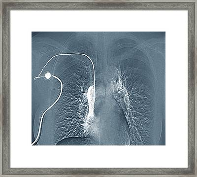 Breast Cancer Treatment Framed Print by Zephyr