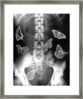 Butterflies In The Stomach Framed Print by Photostock-israel