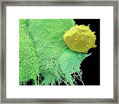 Cancer Cells And Monocyte Framed Print by Steve Gschmeissner