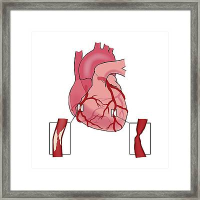 Causes Of Heart Attack Framed Print by Jeanette Engqvist