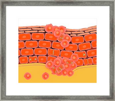 Cell Division During Skin Cancer Framed Print by Science Photo Library