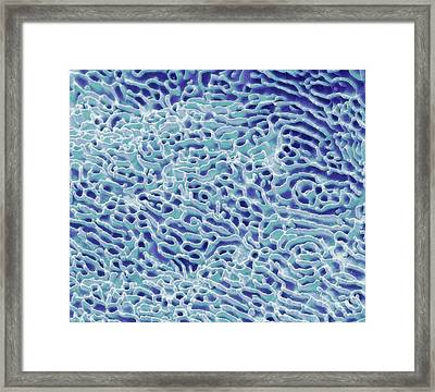 Cheek Squamous Cell Framed Print by Steve Gschmeissner