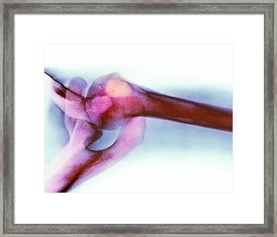 Chondroblastoma Framed Print by Mike Devlin