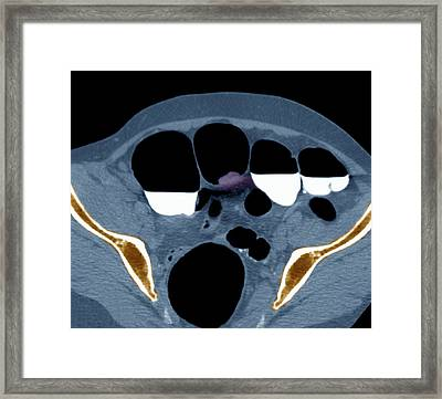 Colon Cancer, Barium Contrast Ct Scan Framed Print by Science Photo Library