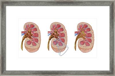 Comparison Of Different Sized Kidney Framed Print by Stocktrek Images