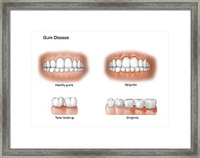 Comparison Of Healthy Gums Versus Framed Print by TriFocal Communications