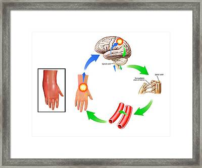 Complex Regional Pain Syndrome Framed Print by John T. Alesi