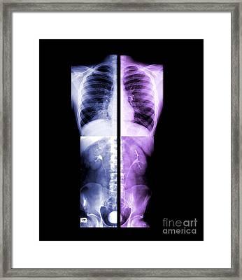 Composite X-rays Of Kidneys Framed Print by Living Art Enterprises