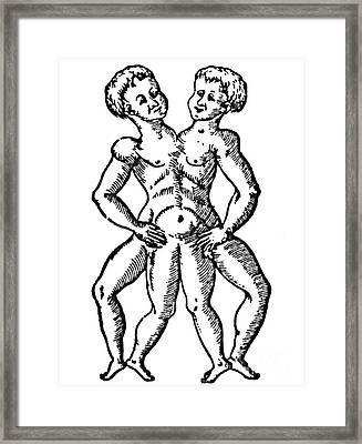Conjoined Twins, 16th Century Framed Print by Science Source